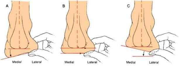 Схемы деформации стопы: вальгусная, варусная и нормальная