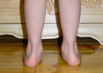 Причины вальгусной деформации стопы у детей и лечение