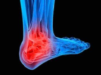 как вылечить артрит голеностопного сустава народными средствами
