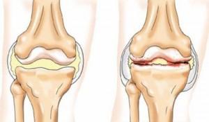 Здоровый и сустав, пораженный артритом
