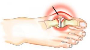 Воспаление большого пальца на ноге (рисунок)