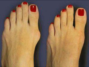 Выздоровление при артрозе большого пальца на стопе