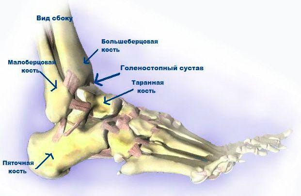 Лечение артроза голеностопного сустава в разных стадиях