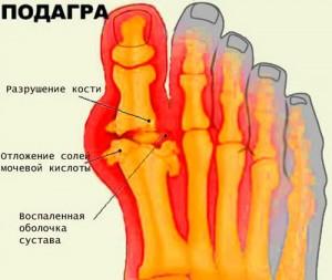 Рисунок образования подагры на ноге