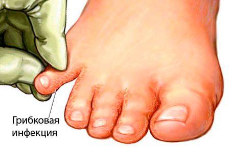 Грибок большого пальца на ноге чем лечить