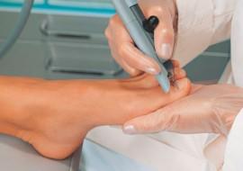 Лечение грибка кожи и ногтей на руках