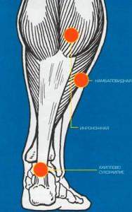 Очаги воспаления в мышцах ноги
