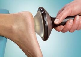 Лечение шпоры на пятке методом ударно-волновой терапии