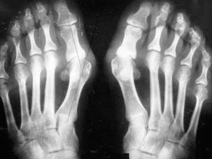 Рентгеновский снимок стоп