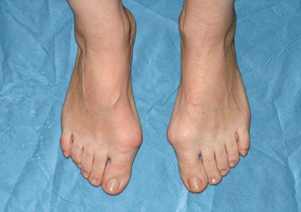 Косточки на ногах лечение и причины возникновения
