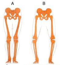 Ровные ноги и с О-образной кривизной