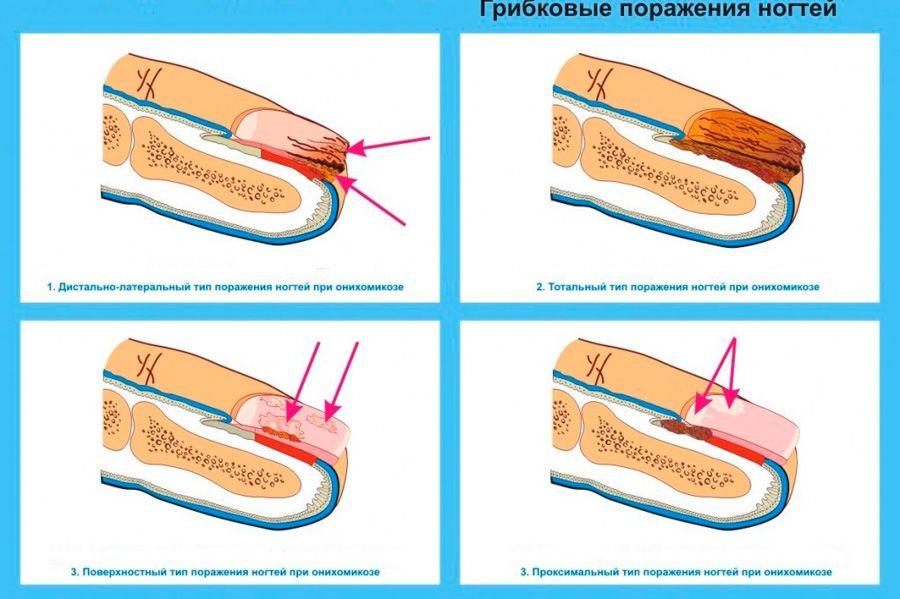 Аппаратные методы лечения грибка ногтей