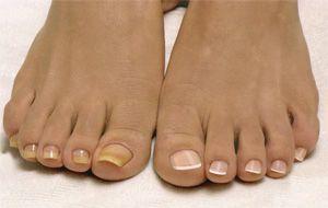 Ногти на ноге с грибком