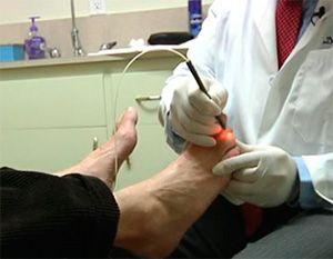 Пациенту светят на ногти ног лазером