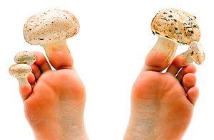 На ногтях ног выросли грибы