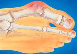 Косточки на ногах болят лечение народными средствами