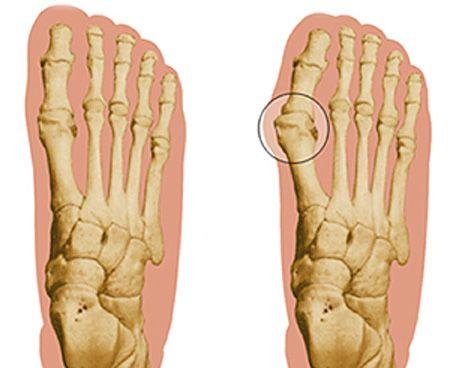 Здоровая стопа и шишка на большом пальце