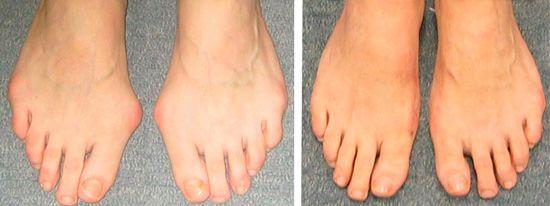"""Ноги до и после операции над """"косточкой""""."""