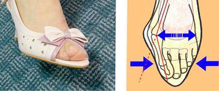 Вред ношения узких женских туфель.