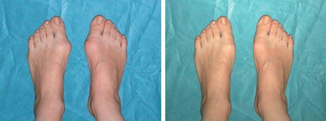 Фото до и после операции на деформацию пальца стопы.