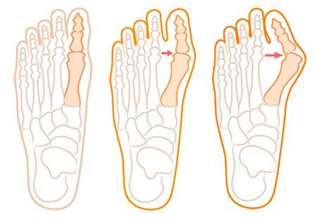 Стадии вальгусной деформации пальца стопы