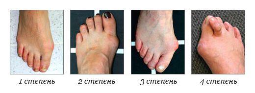 Четыре стадии деформации косточки.