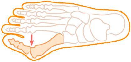 Скелет стопы с деформацией косточки большого пальца